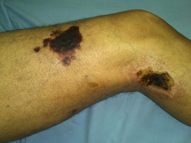 Patchy gangrene due to vasculitis